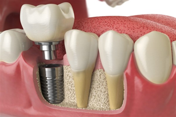 Diş implantı sonrası beslenmeye dikkat