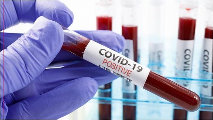 Koronavirüs salgınında ölenlerin sayısı 9 bin 950'ye ulaştı