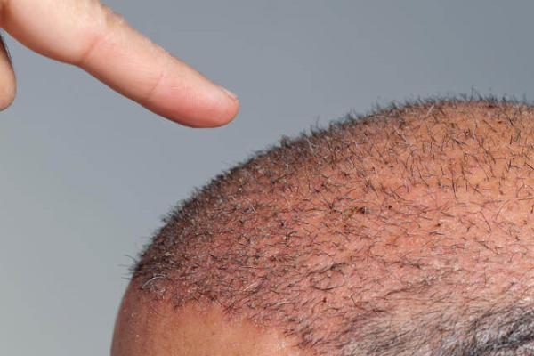 Saç ekimi kabusunuz olmasın