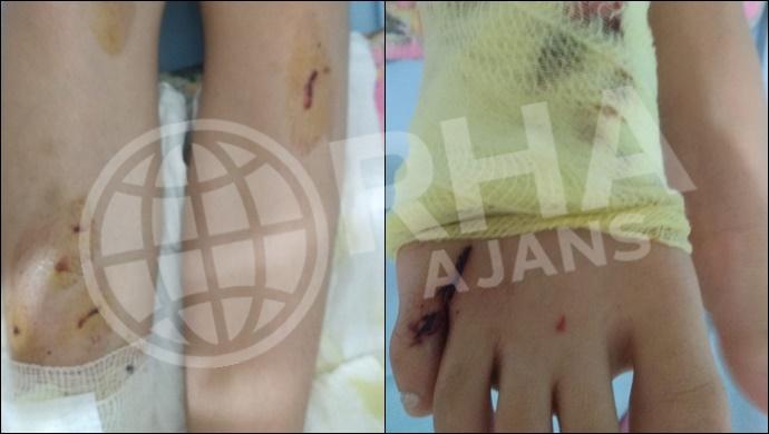Şanlıurfa'da Balkonda torpilin patlaması sonucu: 1 kişi yaralandı