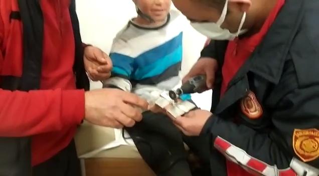 Urfa'da çocuğun parmağına sıkışan yüzük kesilerek çıkartıldı