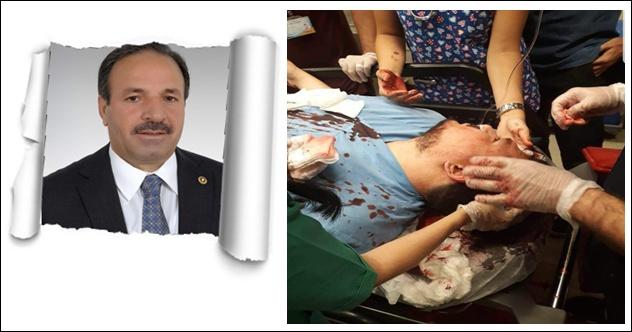 Vekil Özcan,Dr.Yalçın'a Saldırıyı Kınadı
