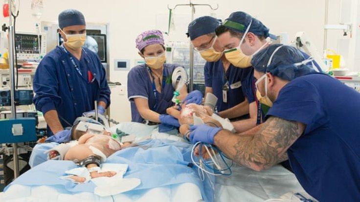Yapışık ikizler ameliyatla ayrıldı